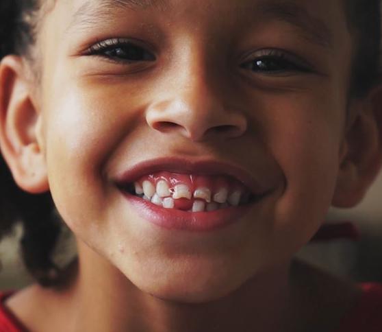 Plongez dans le monde de Septodont – un monde sans douleur dentaire
